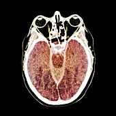 Brain death following cardiac arrest,CT