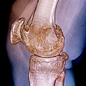 Knee in osteoarthritis,3D CT