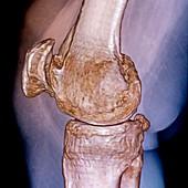 Knee in osteoarthritis,3D CT