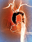 Aortic arch,X-ray