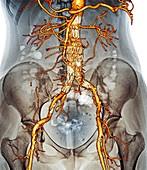 Stent in carotid aneurysm,3D CT scan