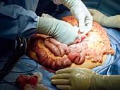 Bowel surgery
