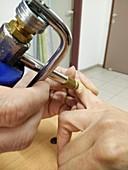 Wart on an index finger