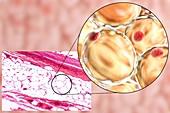Fat cells,illustration