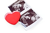 Baby scan photos and red heart