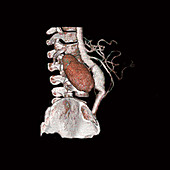 Abdominal aortic aneurysm and kidney