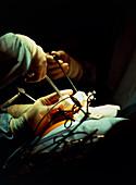 Surgeon using laparoscope
