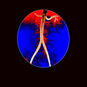 Angiogram of aorta and renal arteries