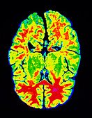MRI horizontal image of a normal brain