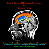 Biochemical basis of Schizophrenia