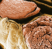 Sciatic nerve bundles