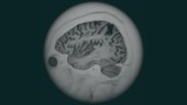 Brain atrophy, 3D MRI scan