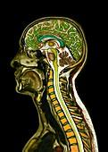 Head and neck, sagittal MRI