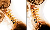 Artificial discs in the cervical spine, X-rays