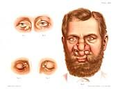 Xanthelasma and rhinoscleroma, illustration