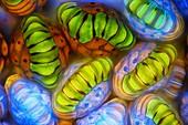 Fern sporangia, fluorescence light micrograph