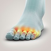 Athlete's Foot, artwork