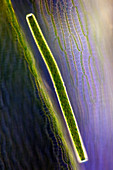 Desmid on sphagnum moss, light micrograph