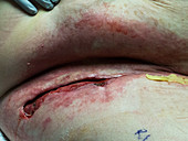 Surgical drainage of Candida infection