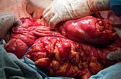 Scrotal hernia surgery