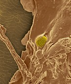 Nose hair with mucus and trapped pollen grain, SEM