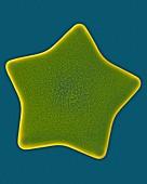 Marine diatom (Triceratium formosum), SEM