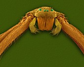 Brown recluse spider (Loxosceles reclusa), SEM