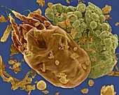 Dust mite, dust and faecal pellet, SEM