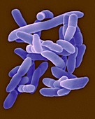 Arthrobacter sp. pleomorphic, soil prokaryote, SEM