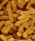 Proteus vulgaris, Gram-negative, SEM