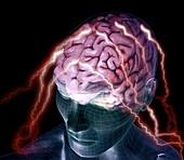 Migraine, conceptual image