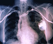Cardiac pacemaker, chest X-ray