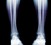 Bone demineralisation assessment, X-ray
