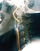 Thrombus in carotid artery, X-ray