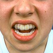 Tooth brace