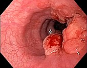 Oesophageal cancer, endoscopic view