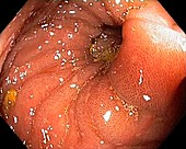 Melanosis coli, endoscopic view