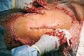 Hip replacement surgery