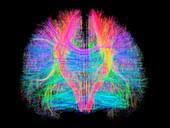 White matter fibres of the human brain