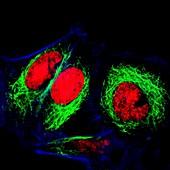 HeLa cervical cancer cells, fluorescence light micrograph