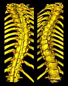 Scoliosis of the thoracic spine, illustration
