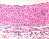 Wall of an elastic artery, light micrograph