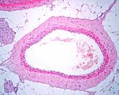 Medium sized vein, light micrograph