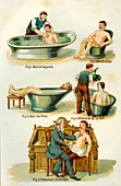 19th C bath and electrical treatments, illustration