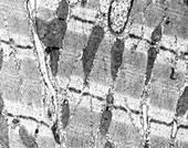 Heart muscle cell, TEM