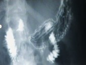 Barium meal, stomach X-ray footage
