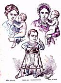 Child learning to walk, 19th Century illustration