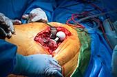 Hip replacement surgery, close-up