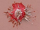 Human dendritic cell, SEM