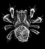 Hammock spider (Pityohyphantes costatus), SEM